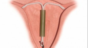 Mirena, Jaydess, stérilet, DIU, dispositif intra-utérin, pharmacovigilance, Ansm, levonorgestrel