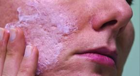 Objectif, peau, données, maladies, acné, pelade, qualité