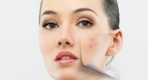 peau acné dermatose objectif peau